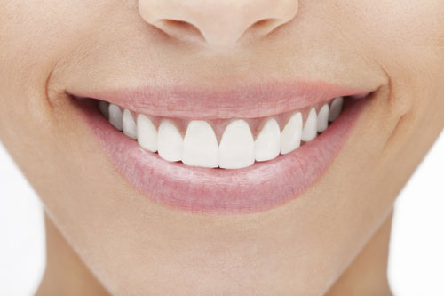 Smiling mouth with veneers from Anthony Dailley, DDS