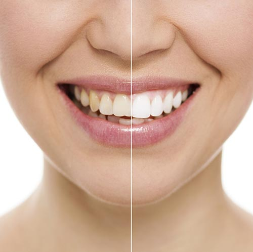 Before and after teeth whitening at Dailley Dental Care