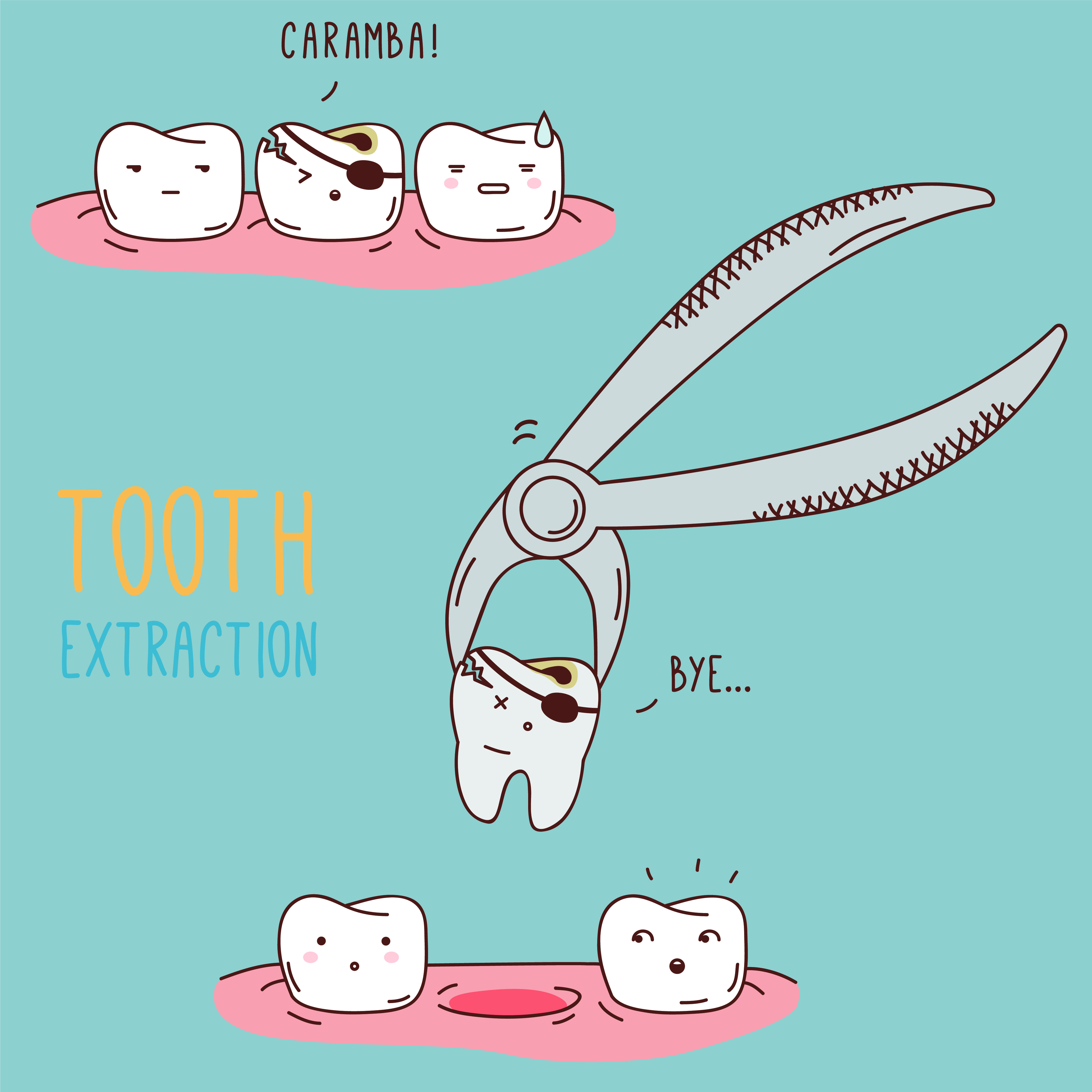 Tooth Extraction graphic from Dailley Dental Care