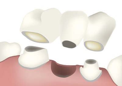 Dental Bridges at Dailley Dental Care