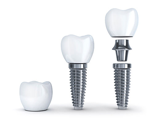 A dental implant consists of the post, abutment, and restoration.