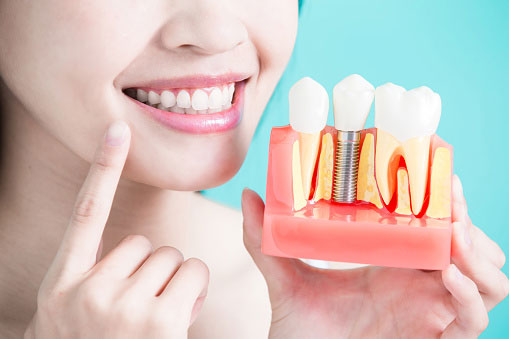 A dental implant is the perfect long-term solution to a missing tooth.