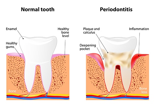 Periodontal Disease Diagram