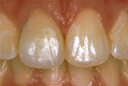 close up of patient's smile after receiving dental crowns