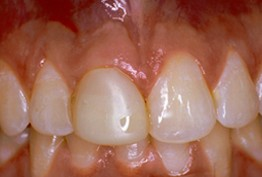 close up of patient's smile before receiving dental crowns