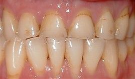 close-up of patient's smile before receiving dental crowns