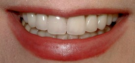 close-up of patient's smile after receiving dental crowns