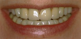 close up of patients smile before receiving dental crowns