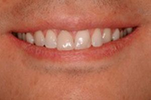close up of patients'smile after receiving dental implants