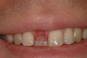 close-up of patient's smile before receiving dental implants