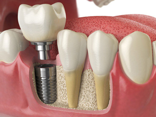 A dental implant surgery involves surgically placing the post and then attaching the abutment and restoration.