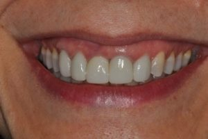 close-up of a patient's smile after a restorative procedure