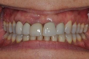 close up of a patient's smile before a restorative procedure